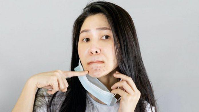acné, maskne