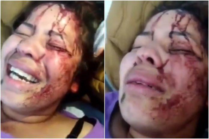 Venezolana sufrió brutal agresión en Ecuador por no poder pagar dos meses de alquiler